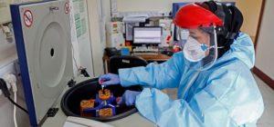 Ερευνά για CoViD-19: Σοβαρότερη η κατάσταση στην ομάδα αίματος Α, πιο ήπια στην ομάδα αίματος Ο