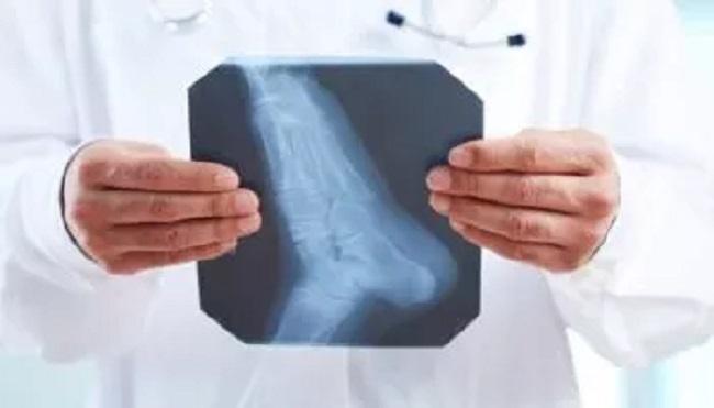 προληπτικού ελέγχου οστεοπόρωσης